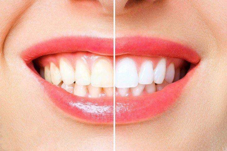 Teeth Whitening Extreme Makeover Top Products To Whiten Teeth Reviewed